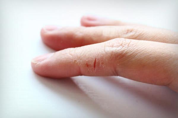 Трещины на руках